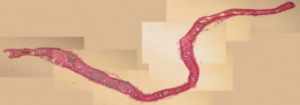 Whole mount slide of a Nasitrema spp. trematode, which infects several dolphin species.